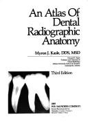 An atlas of dental radiographic anatomy